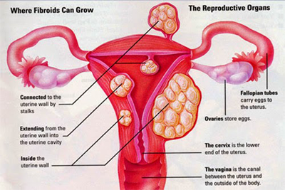 fibroid-and-infertility