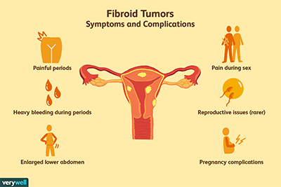 fibroid symptoms2