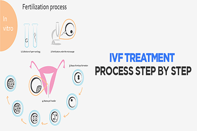 IVF-treatment-process-step-by-step