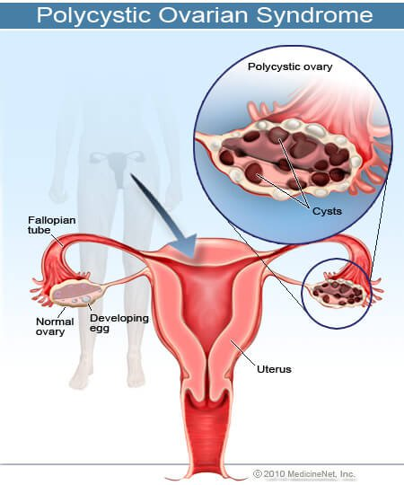 2011-polycystic-ovarian-syndrome