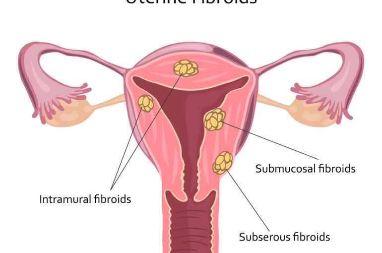 Uterine Fibroids icon. Vector illustration flat design