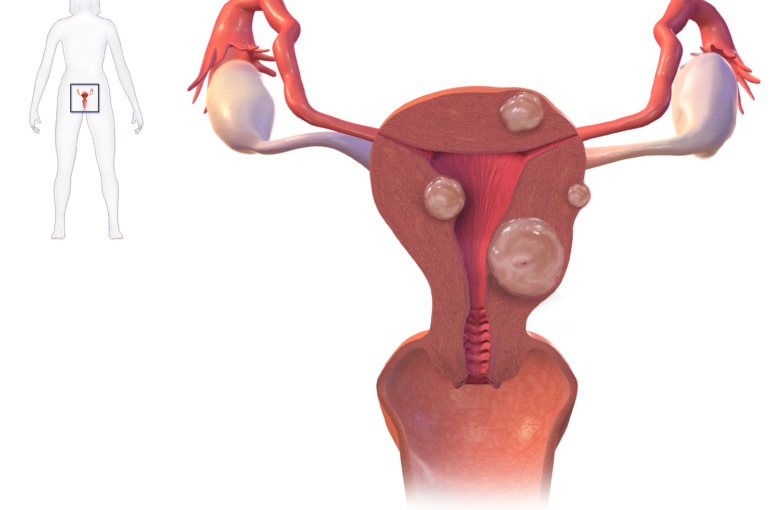 Uterine_Fibroids commoms.wikimedia
